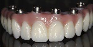 fixed implant bridge