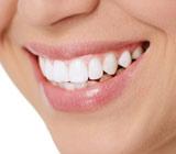 TeethWhiteningSafetyDependsontheRightProductUsedintheRightway